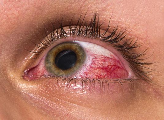 Eye Soreness